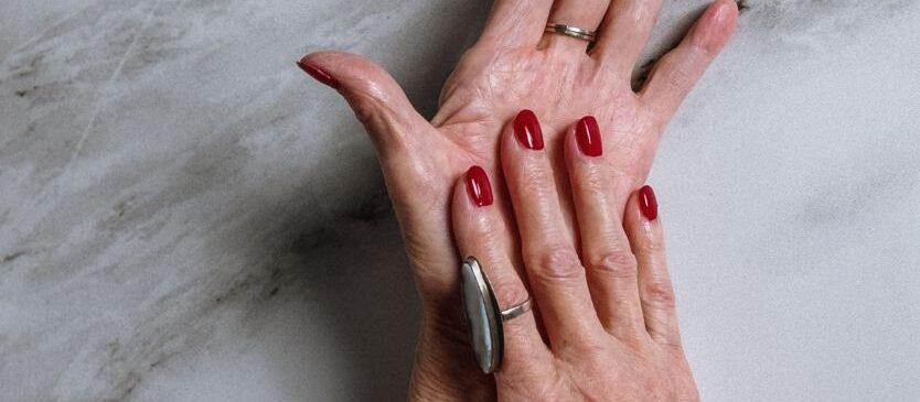 managing arthritis